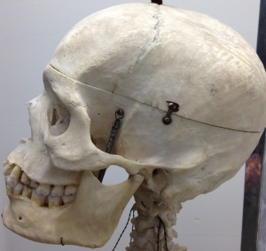The cranium is an un-yielding house for the brain. Even the smallest bit of swelling in the brain can be a problem because the bony cranium does not expand.