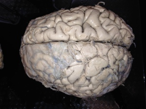 A top down view of the human brain shows the two cerebral hemispheres which are not joined except at the corpus callosum, which is only present at the ventral margin of the medial hemispheres.