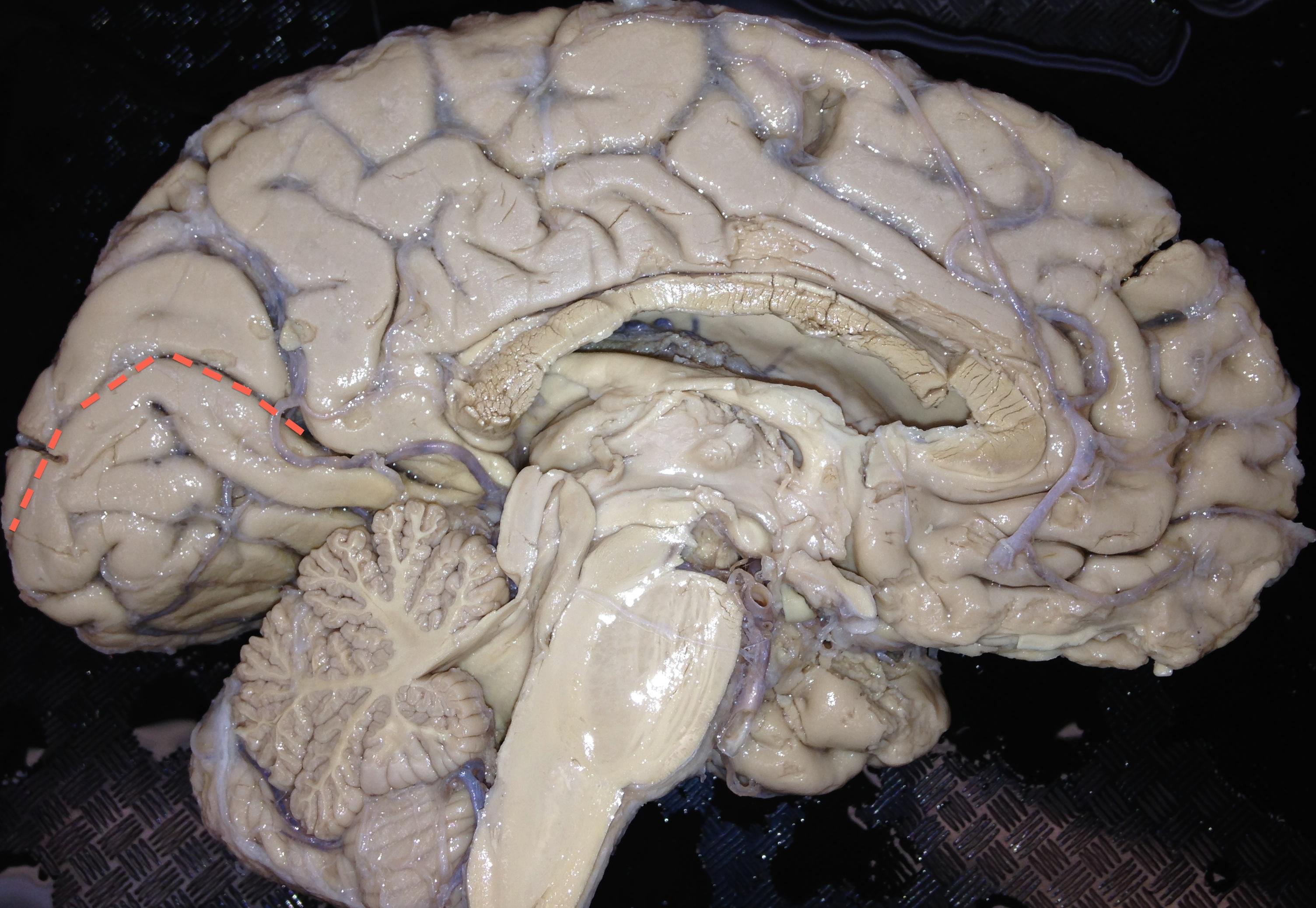 Let\'s go claustrum-hunting – The brain is sooooo cool!