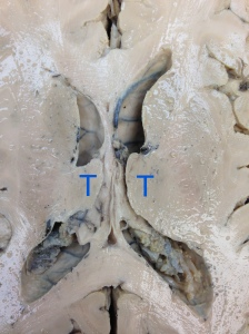 This is a horizontal section throught the thalamus (T). In this image, up is anterior. Many other structures are also visible, including the lateral ventricles, choroid plexus, caudate, internal capsule, corpus calossum and more.